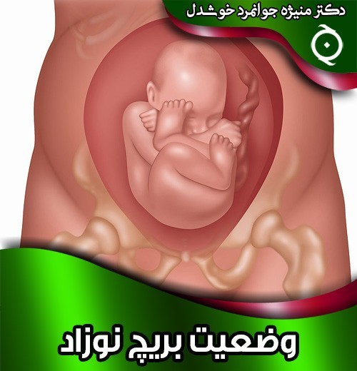 وضعیت-بریچ-نوزاد