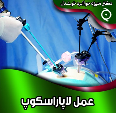 عمل لاپاراسکوپ