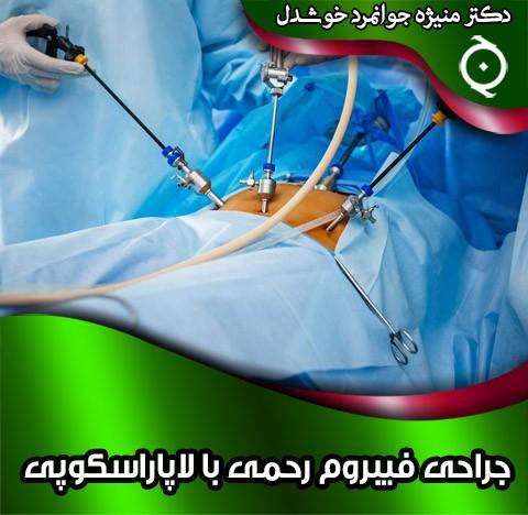 جراحی فیبروم رحمی با لاپاراسکوپی