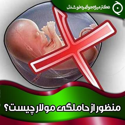 منظور از حاملگی مولار چیست