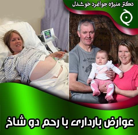 عوارض بارداری با رحم دو شاخ